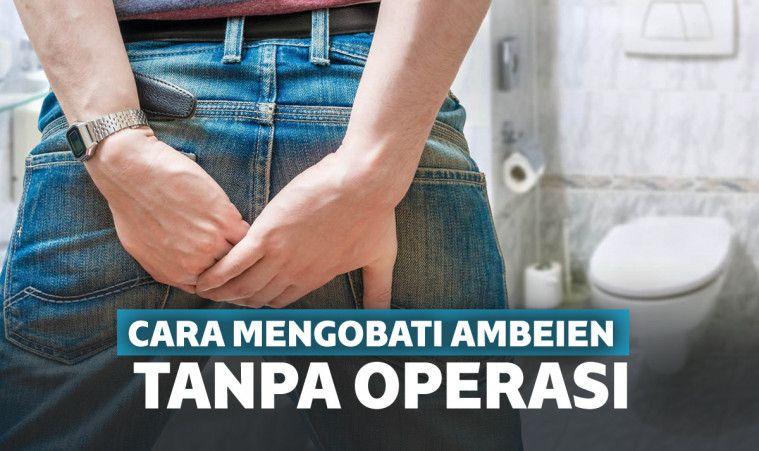100% Ampuh! 9 Cara Mengobati Ambeien Secara Alami Tanpa Operasi | Keepo.me