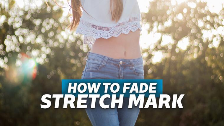 Cara Menghilangkan Stretch Mark Secara Alami Tanpa Operasi | Keepo.me