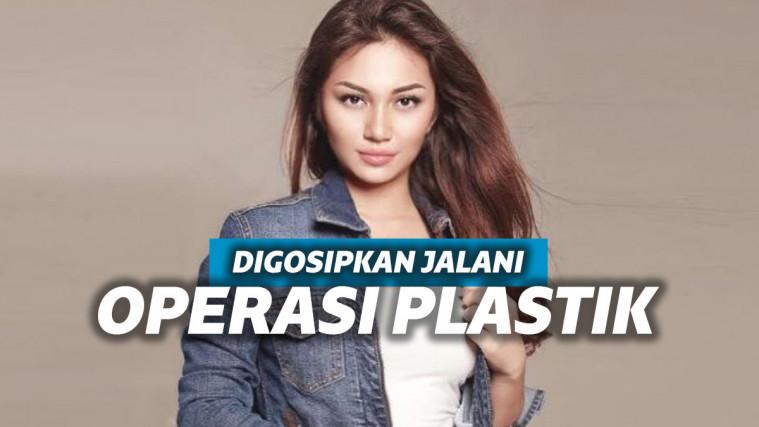 Penampilan Berubah Drastis, 7 Seleb Cantik Ini Dituding Lakukan Operasi Plastik | Keepo.me