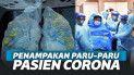 Viral Paru-Paru Pasien Terinfeksi Corona, Begini Penampakannya!