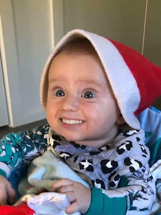 15 Foto Bayi Bergigi Ini Bikin Kita Ngeri Lihatnya