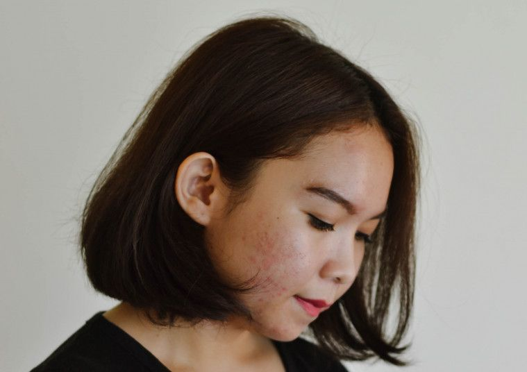Cara Menghilangkan Flek Hitam Dengan Alami Dan Mudah